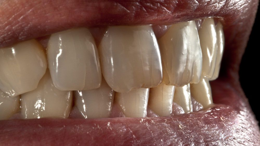 Macrofotografía odontológica en Cáceres