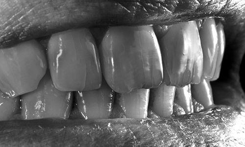 detalle-foto-intraoral-grietas