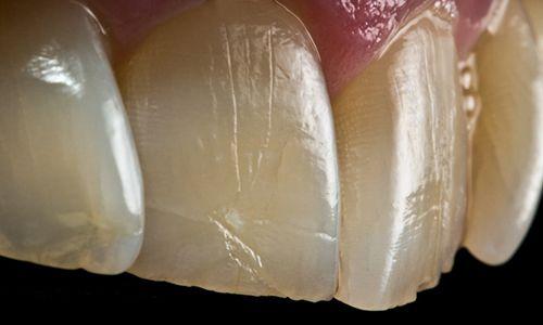 fotografia-dental_detalle-dientes